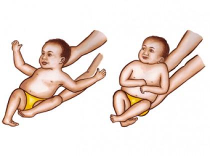 المنعكسات البدائية لدى الاطفال منعكس مورو