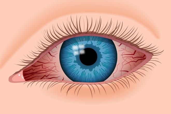 تقليل إجهاد العين