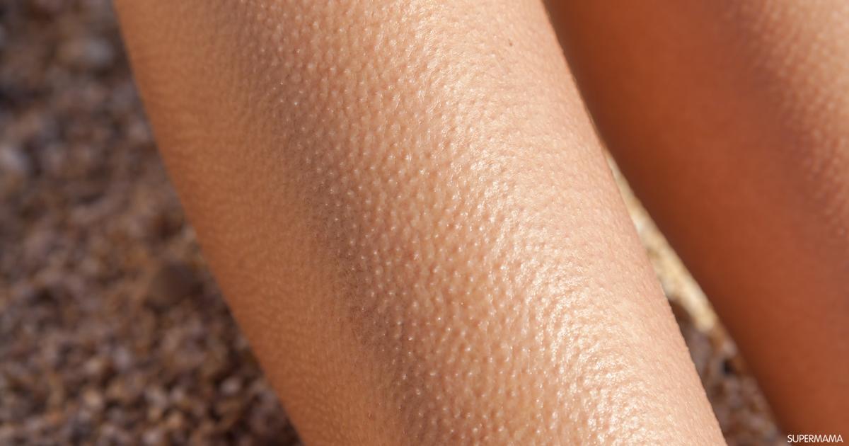 جلد الأوزة أبرز المشاكل الجلدية المزعجة .. عالجيها ب وصفات طبيعية من المنزل ..